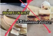 อย่าตระหนก!! กล้วยฉีดเลือดเอดส์! ไม่มีจริง!!