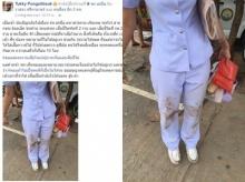 ปรบมือดังๆ!! แพทย์-พยาบาลช่วยเหลือคนเจ็บจากอุบัติเหตุจนมีสภาพแบบนี้ !!