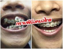หนุ่มเเชร์เรื่องราว กราบฝีมือหมอไทย ฟันระเนระนาด เเต่ดึงใหม่จนดี