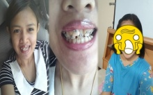 โคตรทึ่ง!!! การจัดฟันแบบใส ราคา 1 แสน 8 หมื่นบาท กับเวลา 1 ปี ที่ทำให้ชีวิตเธอเปลี่ยนทันที!