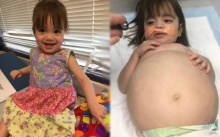 หนูน้อย8เดือน ท้องโตเหมือนคนท้อง เมื่อหมอตรวจดูและบอกอาการให้แม่ทราบ ถึงกับช็อกหนัก!