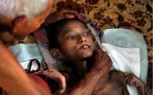 ปู่วัย 88 แม้ร่างกายทรุดโทรม ขอดูแลหลานสาววัย 17 ป่วยโรคหายาก จนกว่าจะถึงวาระสุดท้าย!!