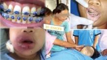แฟชั่นสยอง!! เด็กสาวดับอนาถหลังดัดฟัน ที่โซเชียลแชร์ในขณะนี้