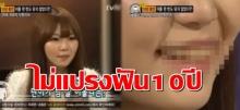 อยู่ไปได้ไง? สาวเกาหลีไม่ได้แปรงฟันมา 10 ปี!! สีมาขนาดนี้ แล้วกลิ่นจะขนาดไหน!!