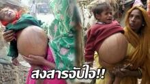 น่าสงสารจับใจ!  เด็ก 2 ขวบ แบกท้องโต 9 กิโล พอแพทย์ตรวจข้างในท้อง แทบทรุด!!