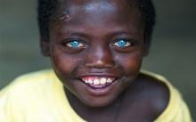"""เปิดชีวิตเด็กชายแอฟริกัน เกิดมาพร้อม """"ตาสีฟ้า"""" แต่ชีวิตไม่ได้สวยงามเหมือน """"นัยน์ตา"""" !!"""