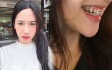 สาวอยากฟันสวย ตัดสินใจหาหมอ ตัดเหงือก ใช้เวลาผ่า 30 นาทีกลับบ้านได้?! ก่อนเห็นสภาพล่าสุด ฮือฮาทั้งโซเชียล!