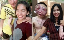 ก่อนโรคร้ายจะลุกลาม!! เปิดหน้าหนุ่มป่วยมะเร็งตา!! ตอนที่ยังไม่ป่วย น่ารักมีเสน่ห์มากๆ
