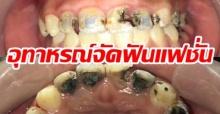 ต้องใส่ฟันปลอมตั้งแต่ยังสาว!! หญิงสาววัย 25 ฟันผุเกือบทั้งปาก!! หลังใช้บริการร้านจัดฟันแฟชั่น