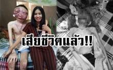 แฟนสาวใจสลาย...หนุ่มป่วยมะเร็งใบหน้าเสียชีวิตแล้ว!! ขอโทษที่กลับไปดูใจไม่ทัน
