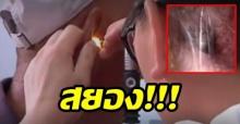คุณตาวัย 60 ไปหาหมอ รู้สึกมีอะไรดิ้นในหู ตรวจเจอถึงกับช็อก!! มีแมงมุมชักใยทำรังอยู่ (มีคลิป)