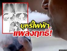 ถกกันสนั่น! พบเด็กอเมริกาปอดอักเสบ หลังใช้บุหรี่ไฟฟ้า เตือน เด็ก-เยาวชน ไม่ควรใช้