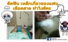 อุทาหรณ์คนจัดฟัน !! สาวช่วยแฟนจนน้องชายเลือดสาดต้องหามส่งหมอ! ก่อนรู้เกิดอะไรขึ้น!
