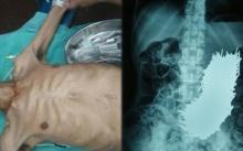 อึ้งทั้งโรงพยาบาล!! หนุ่มใหญ่ปวดท้องเฉียบพลัน หาสาเหตุไม่ได้ แพทย์เอกซเรย์ดูถึงกับตะลึง?