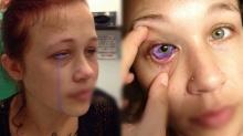 นางแบบสุดช็อก! ให้แฟนหนุ่มสักดวงตา แต่พลาด น้ำตาไหลเป็นสีม่วง หวิดบอด!