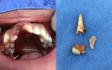อุทาหรณ์!! ใส่ฟันปลอมเถื่อน เจาะเดือย ทำเหงือกอักเสบรุนแรง หมอเตือนติดเชื้อขึ้นสมอง!!