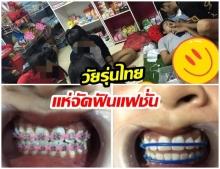 หมอยังต้อง งง! วัยรุ่นเเห่จัดฟันเเฟชั่น พบ ฟันผุเต็มปาก