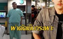 ขยี้ตาพัง!! หนุ่มอ้วน155 กิโล! ตัดสินใจผ่าตัดเย็บกระเพาะผ่านไป 2 ปี แทบไม่เชื่อสายตา!