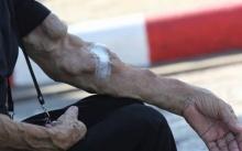 แทบผงะ!! เมื่อเห็นแขนยายคนหนึ่ง มีรูปร่างผิดปกติ เข้าไปถามจนรู้สาเหตุ?