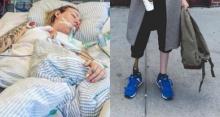 """ช็อก! """"นางแบบดัง"""" ชีวิตเสี่ยงตาย ขาเน่าลุกลามจนต้องตัดขา เพียงเพราะ """"ผ้าอนามัย !?"""