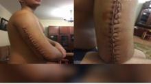หนุ่มผ่าตัดแขนหัก รอยแผลเย็บสุดห่วย หวิดเน่าซ้ำฝีมือหมอเบอร์ 1 ของโรงพยาบาล