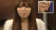 สาวรายนี้ ไม่แปรงฟัน มานาน 10 ปี! แต่พอบอกเหตุผล และเห็นภาพภายในปากเธอยิ่งตะลึง!