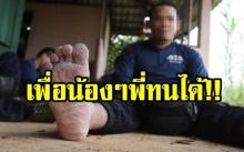 ตชด.พลร่ม กองร้อยกู้ชีพ 13 ชีวิต ติดถ้ำหลวง เท้าติดเชื้อ เกิดจากการใส่รองเท้าลุยน้ำเป็นเวลานาน
