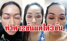 สยอง!!! สาวไปศัลยกรรมตา 2 ชั้น แต่ดันเจอแจคพอตได้เพิ่มมาอีก 1 ชั้น กลายเป็นตา 3 ชั้น
