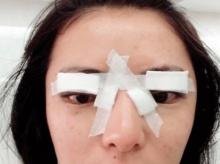 สยอง!สาว18ปีทำตาสองชั้นฟรี สุดท้ายกระจกตาทะลุ