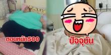รักษาหญิงอ้วน 500 กิโลฯ น้ำหนักลดไปครึ่งหนึ่ง นั่งเก้าอี้รถเข็นได้แล้ว!!