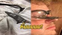 เสียวแทน!! ชายหนุ่มโพสต์เตือนใจ ให้ทุกคนสวมแว่นนิรภัยทุกครั้ง ก่อนใช้เครื่องมือต่างๆ