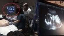 ทำใจไม่ได้! สาวไปตรวจครรภ์ หลังอัลตร้าซาวด์ดู สะเทือนใจ เกิดมาทั้งชีวิตไม่เคยเห็นภาพแบบนี้!