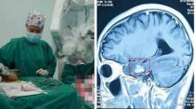 หนุ่มปวดหัวนาน 2ปี คิดว่า เป็น ไมเกรน สุดท้ายให้หมอตรวจ พบบางอย่างอยู่ในสมอง!!