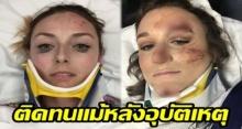 ยอมใจเลย!! สาวโดนรถชนเลือดอาบ แต่ยังมีอารมณ์ถ่ายรูปรีวิวอายไลน์เนอร์แบรนด์ดัง ลงโซเชียล!!