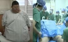 หนุ่มวัย 19 ปี หนัก 334 กิโลกรัม เข้าผ่าตัดลดความอ้วน เพราะฝันอยากเป็นเทรนเนอร์!!