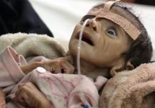 วิกฤตหนัก! ชาวเยเมนครึ่งประเทศประสบปัญหาขาดสารอาหาร