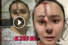 คราวนี้เป็นคลิป!!! สาวเกาหลีศัลยกรรมจมูกพังยับ ใจไม่ถึงอย่าดู หลอนจิตหลุด