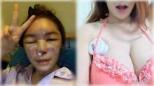 หู้ยยย!! น้องฟ้า จมูกพัง สาวที่โดนหมอศัลยกรรมหลอก ปัจจุบันเป็นแบบนี้แล้ว!!