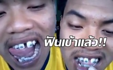 หนุ่มโดนแฟนทิ้งเพราะจัดฟัน ปัจจุบันฟันเข้าแล้วนะ ไปดูกัน!