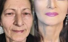 ทึ่ง! ลดอายุคุณยายวัย 80 ให้ดูเด็กลงกว่าครึ่ง ด้วยเทคนิคลบรอยเหี่ยวย่น ไม่ต้องศัลยกรรม