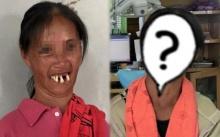 สาวพิการเป็นใบ้!! ฟันหน้าบนเหยินยื่นออกจากปาก หมอได้ช่วยเปลี่ยนชีวิตใหม่ให้เธอ!!?