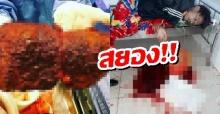 อุทาหรณ์คนชอบดื่ม! คนไข้อ้วกเป็นเลือดกองพื้น หมอผ่าตับเจอสภาพสุดสยอง!!