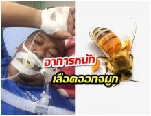 อุทาหรณ์ หนุ่มดูดน้ำจากหลอด เคราะห์ร้ายผึ้งอยู่ในหลอด ต่อยลิ้นไก่ ต้องใส่ท่อช่วยหายใจด่วน