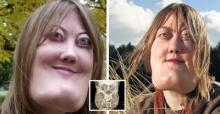 โรคสยอง! แต่ก่อนเธอสวยมากโรคประหลาดได้เปลี่ยนใบหน้าของเธอเป็นแบบนี้
