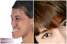 ปัด Let Me In สาวคางยื่น-หน้าเหมือนผู้ชาย หมอไทยทุบหน้าให้จนเป็นแบบนี้