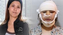 โอ้โห!! สาวไทย ทุ่ม 6 ล้าน ทุบหน้าตัวเอง หลังทำเสร็จ นี่คือ ใบหน้า ที่ทุกคนต้องร้องกรี๊ด!!