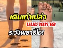 """ระวังพยาธิ! คนที่ชอบ """"เดินเท้าเปล่าบนชายหาด""""  ระวังโดน  """"พยาธิปากขอ"""" ไชที่เท้า"""