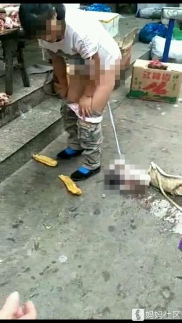 ช็อก! สาวท้องแก่ถอดกางเกงคลอดลูกกลางถนน ลูกหลุดกระแทกพื้น สายสะดือยังไม่ขาด!