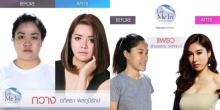 เลิศมาก!!12 คน จากรายการ Let Me In Thailand ก่อน-หลังศัลยกรรม!!