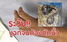 สยองมาก!! งูฉกถึงขั้นต้องตัดนิ้ว!?